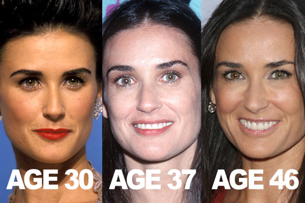 demi-moore-botox-before-and-after