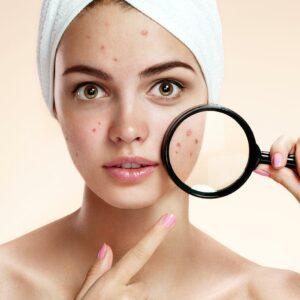tf-tto-marcas-acne-poro-abierto