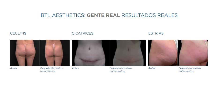 X-wave y Alyda Eternal Beauty Clinic Madrid