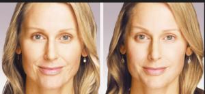 fotos antes y después del Botox