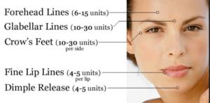 unidades recomendadas de botox