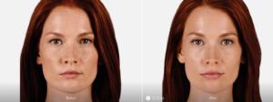 Fotos relleno de labios con ácido hialurónico antes y después