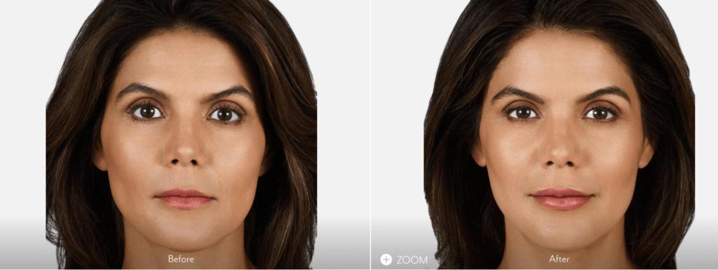 Fotos antes y después relleno de labios