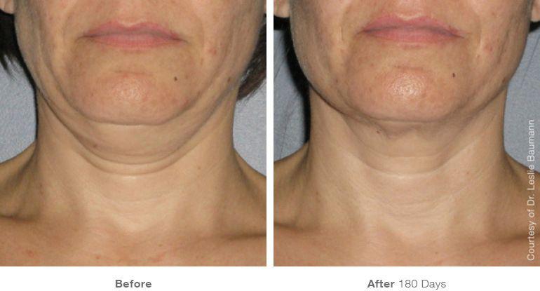 Antes y Después. Tratamiento en cuello con Ulthera