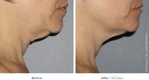 Fotos Antes y Después. Tratamiento en cuello con Ulthera