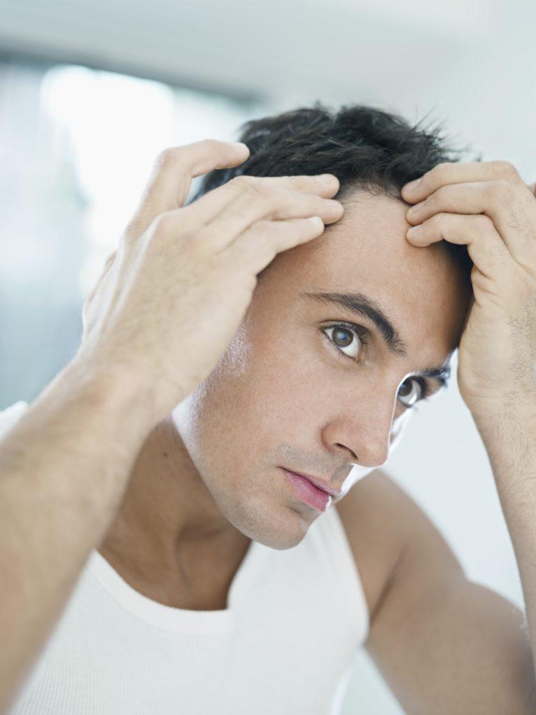 tratamientos para la caída del cabello en hombres