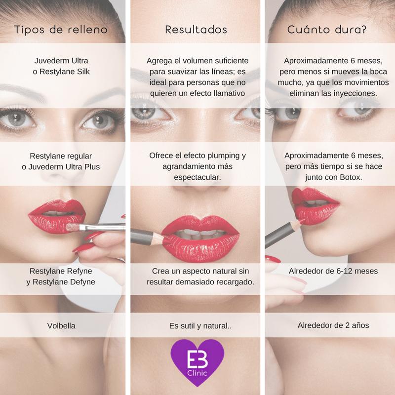 Tipos de relleno para labios