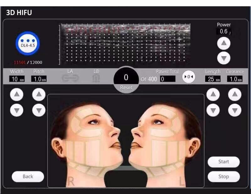 Por qué estiramos la piel de la cara con ultrasonidos HIFU