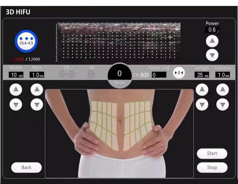 reducción de grasa con utrasonidos HIFU