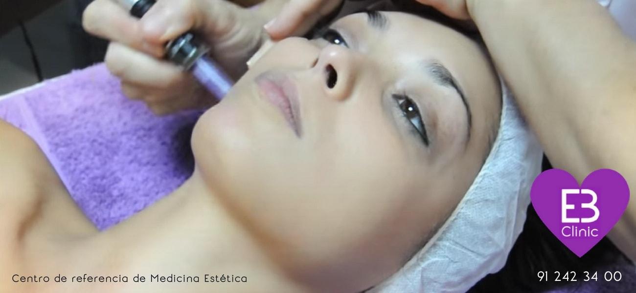 Tratamiento rejuvenecedor con micro agujas ¿Es efectivo?
