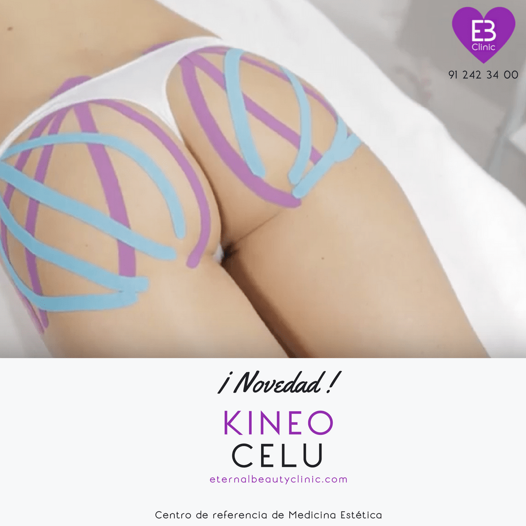 KineoCelu by Eternal Beauty Clinic