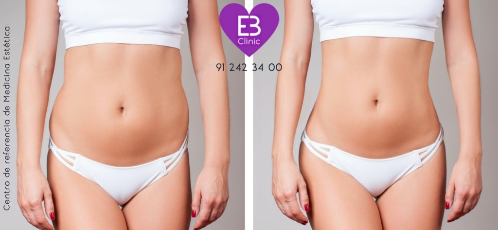 liposucción láser o laserlipólisis en Eternal Beauty Clinic