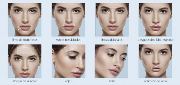 Ventajas de los hilos APTOS para tratar la flacidez facial
