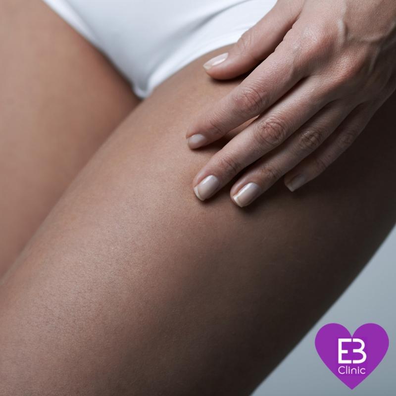 medicina estetica corporal