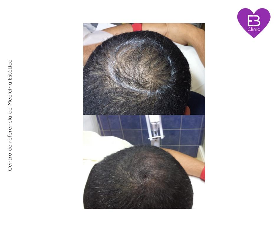 FOTOS ANTES Y DESPUES DE LA MICROPIGMENTACIÓN DE alopecia incipiente